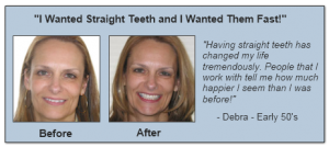 BeforeAfter_Debra