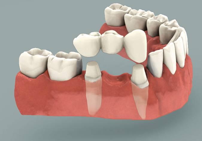 Phục hình răng – NÊN hay KHÔNG NÊN làm cầu răng sứ