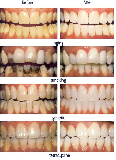 before-and-after-teeth-whitening (1)