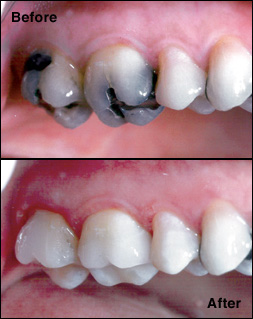 cerec-before-after-zoom