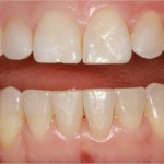 invisalign-1-after