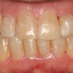 invisalign-2-after