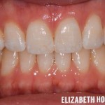 invisalign-3-after