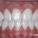 invisalign-4-after