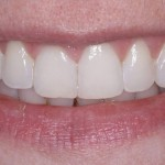 invisalign-6-after